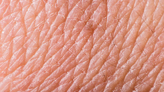 a close up of human skin